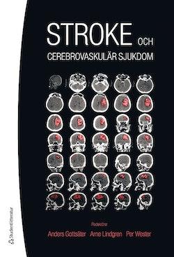 Stroke - och cerebrovaskulär sjukdom