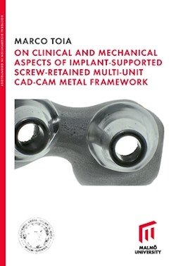 On Clinical and Mechanical Aspects of Implant-Supported Screw-Retained Multi-Unit CAD-CAM Metal Framework