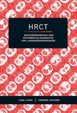 HRCT – Mustererkennung und Differentialdiagnostik von Lungenerkrankungen