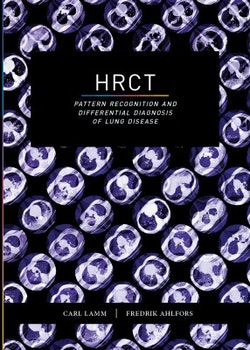 HRCT : pattern recognition and differential diagnosis of lung disease